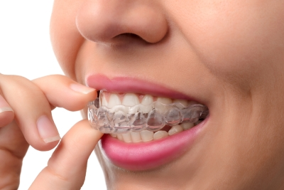 Benefits of Choosing Invisalign Treatment